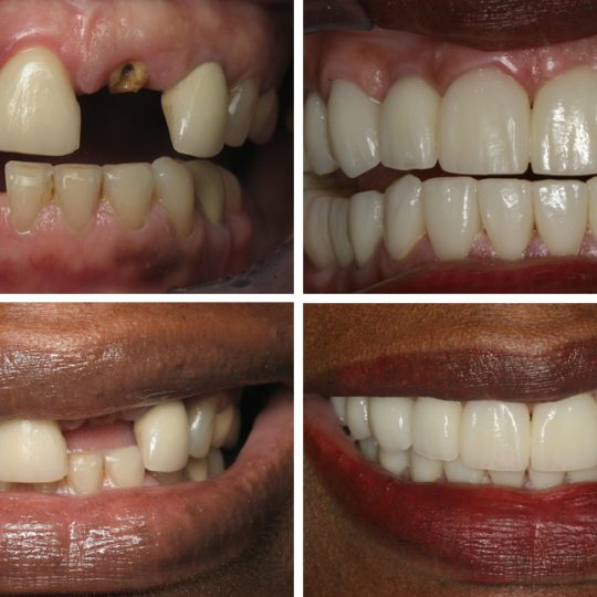 Filling teeth Before & After Picture